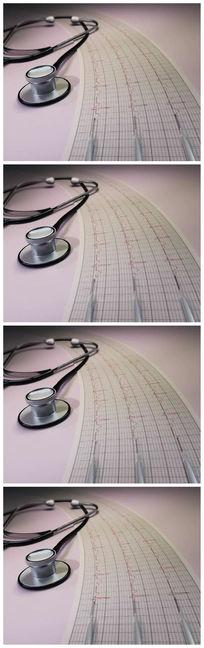 医院听诊器记录视频素材