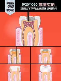 牙髓填充医学演示动画