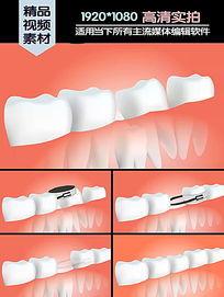 牙正畸手术医学演示