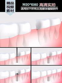 种植牙医学演示动画