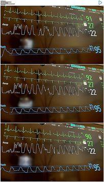医院心电图实拍视频素材