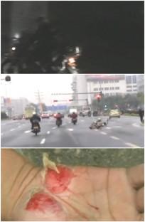 骑摩托车太快摔倒受伤车祸视频
