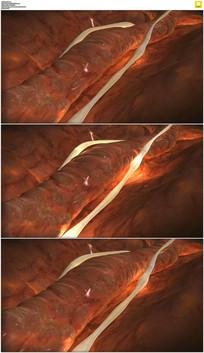 三维心脏血管动态视频素材 mov