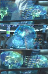 医学脑电波监测全息影像视频
