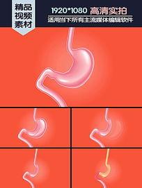 Vsg手术垂直袖状胃切除演示动画