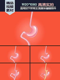 腹腔镜胃旁路手术动画演示
