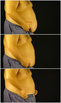 肥胖的肚子脂肪实拍视频素材